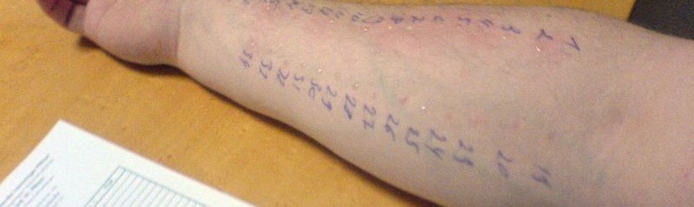 prick-test-allergy testing